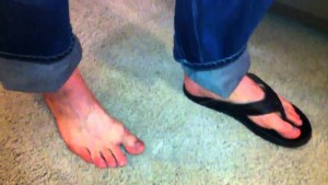 Athletes don't wear flip-flops. Treat your plantar fasciitis