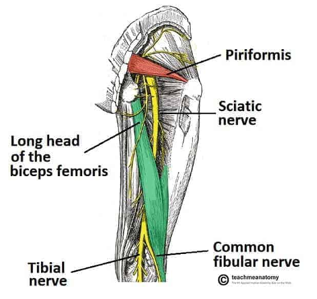 Anatomy drawing of sciatica