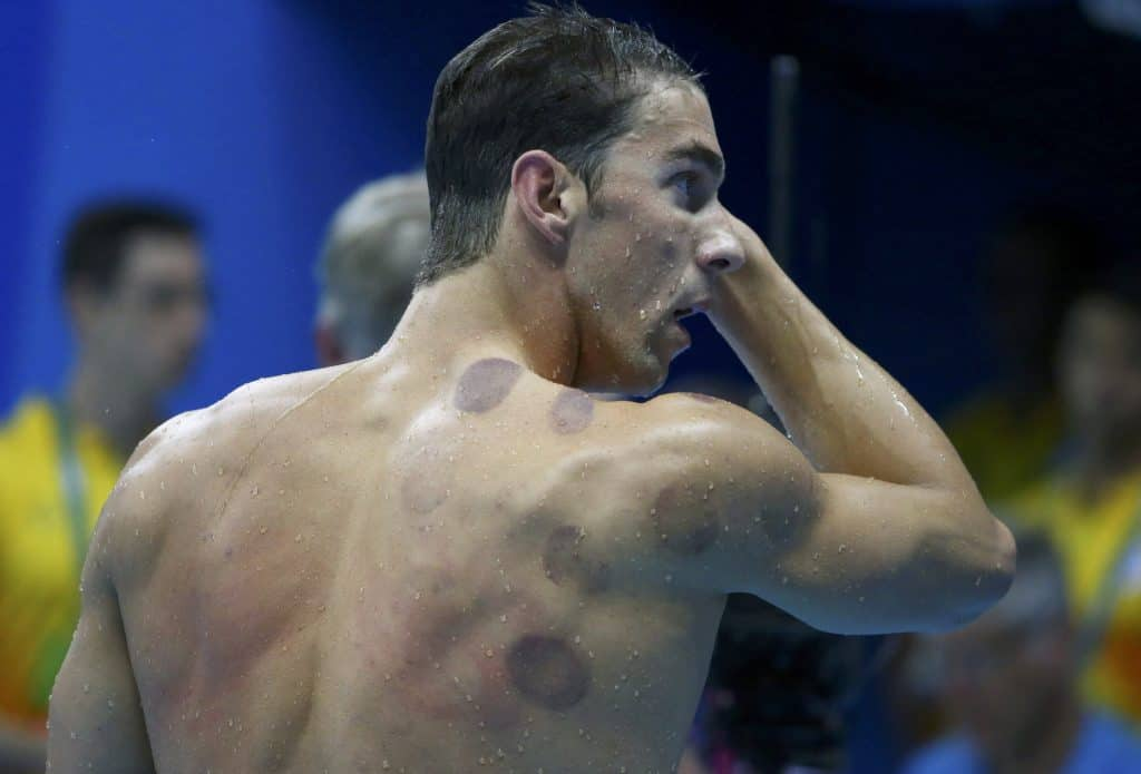 Michael Phelps with cupping marks to demonstrate: does cupping work?