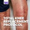 Total Knee Replacement Protocol